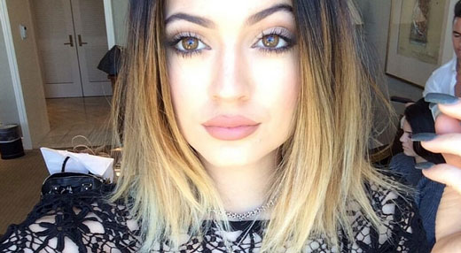 Kylie Jenner Lips Makeup or Lip Injections