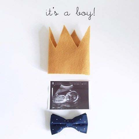 It's a Boy Scan Photo for Gender Reveal